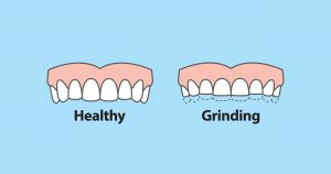 Grinding Teeth Syptoms Solutions 01