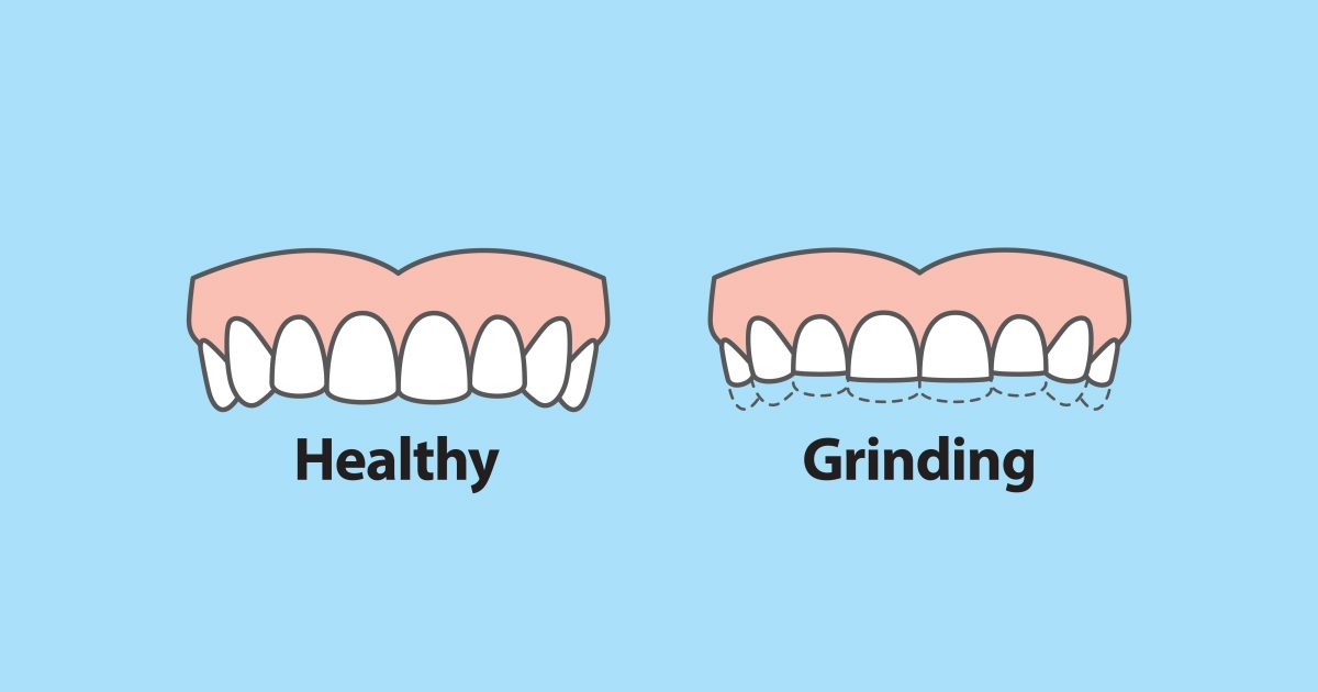 Grinding Teeth Syptoms Solutions 01