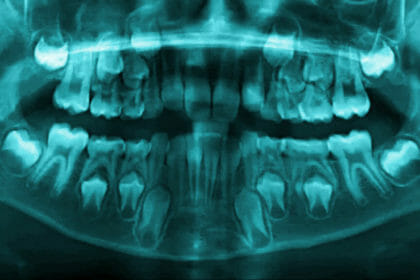 child dentist x-ray teeth wichita ks